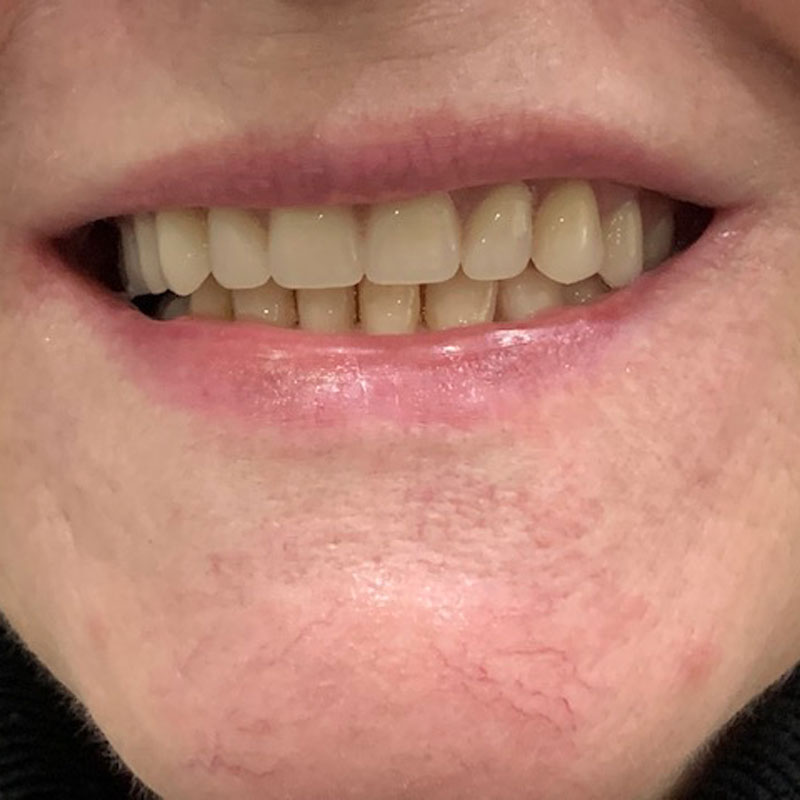 Dentures, after - The Denture Clinic, Broadstairs