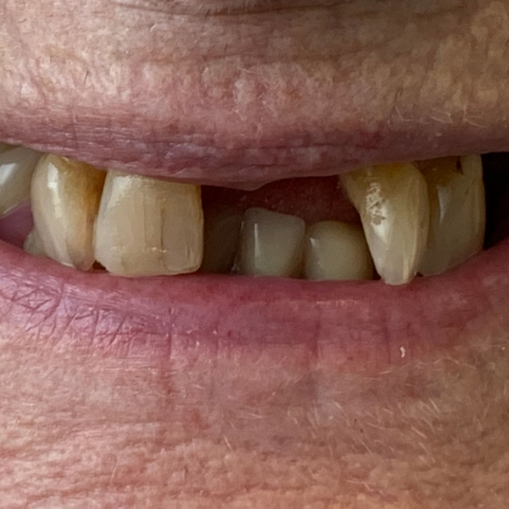 Partial dentures, before - The Denture Clinic, Broadstairs